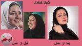 تصاویر قبل و بعد از عمل زیبایی بازیگران ایرانی